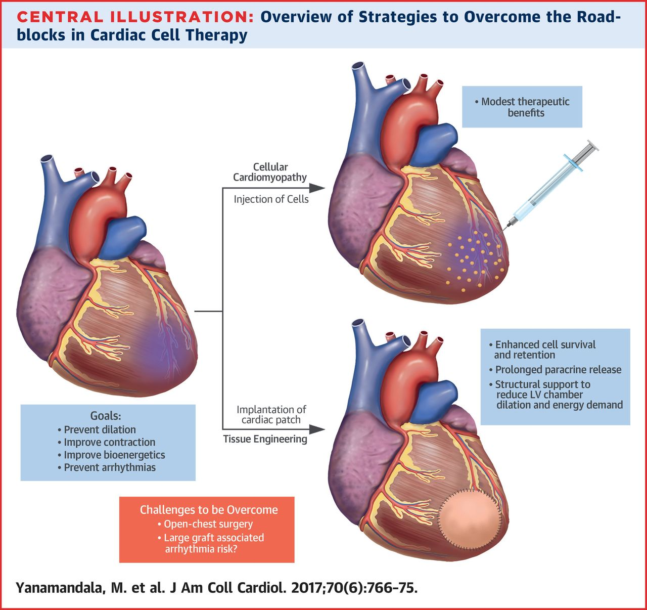 Overcoming the Roadblocks to Cardiac Cell Therapy Using Tissue ...